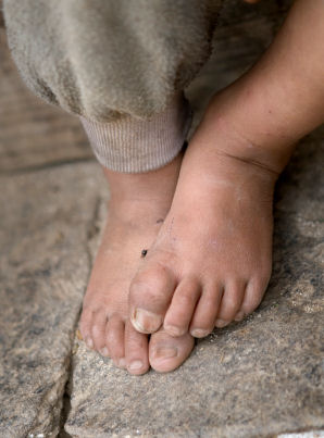 Bhutan the feet of a child
